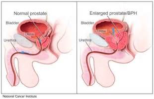 Penis size enlarged prostate picture 2
