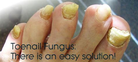 does nail fungus affect overal health picture 16