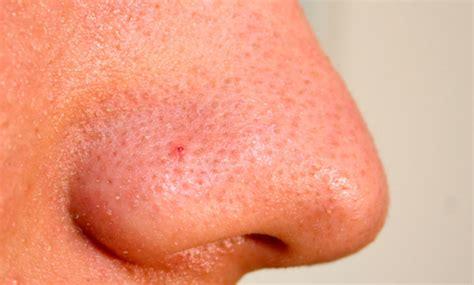 b4 fat burner causing acne picture 5
