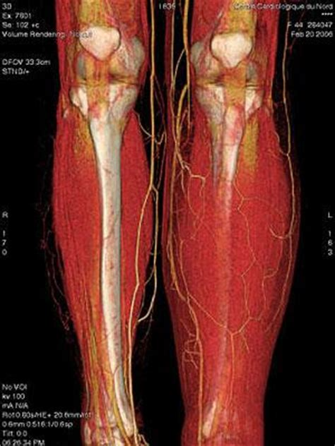 muscle disorders picture 2