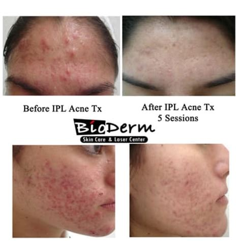 ipl laser results on acne marks picture 1