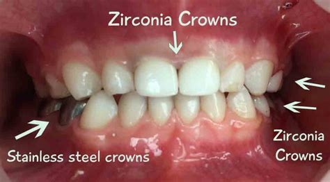 silver spring teeth crown picture 3