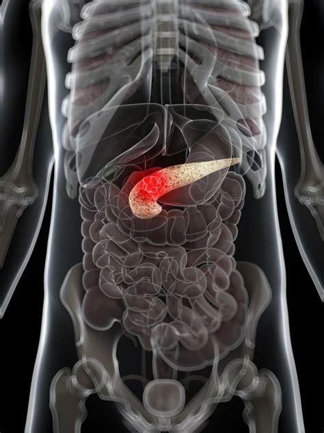 neuro endocrine colon cancer picture 2