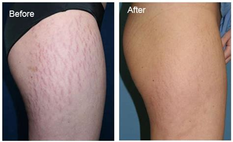 vicks for stretch marks before and after pics picture 1