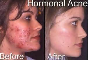 hormonal for acne picture 3