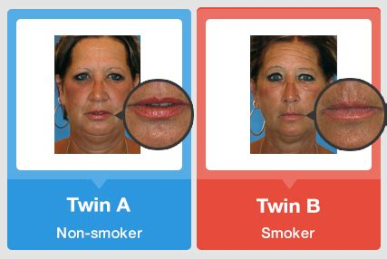 can nicotine cause yellowed skin picture 17