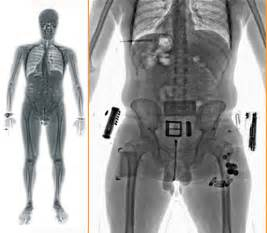 dermatology and male full body scan by female picture 6
