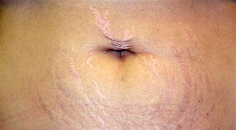 what causes stretch marks picture 2