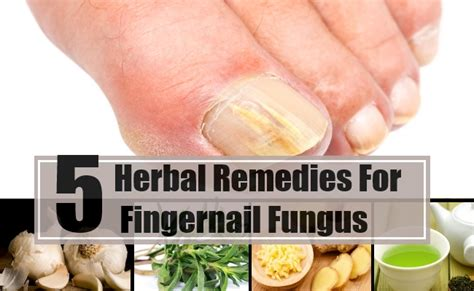 natural remedies for nail fungus picture 3