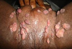 genital warts in the vagina picture 11