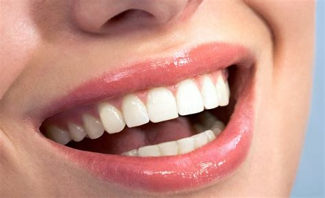 clear bonding for teeth picture 4