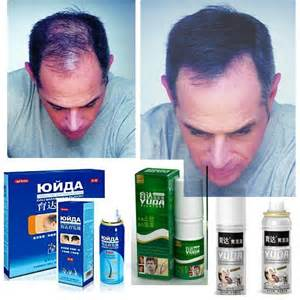 icd-9 hair loss picture 5