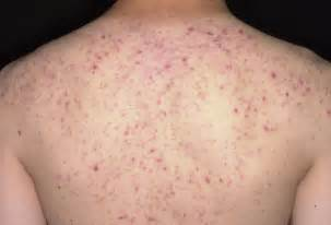 skin fungus on back picture 1