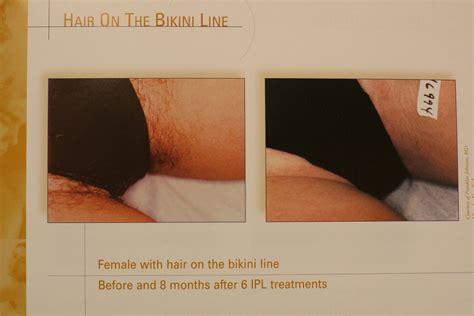 bikini line hair removal picture 1