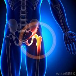 hip pain at leg joint picture 3
