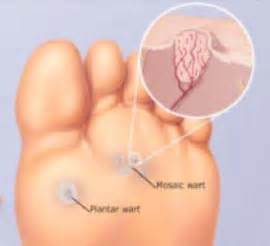 surgical removal of plantar warts pictures picture 17