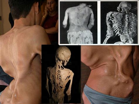 skin disorder pr picture 3