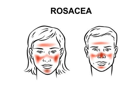 rosacia skin condition- picture and description picture 3