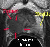Prostate tumors picture 9