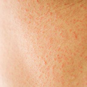 chest rashes red dots red skin very itchy picture 9