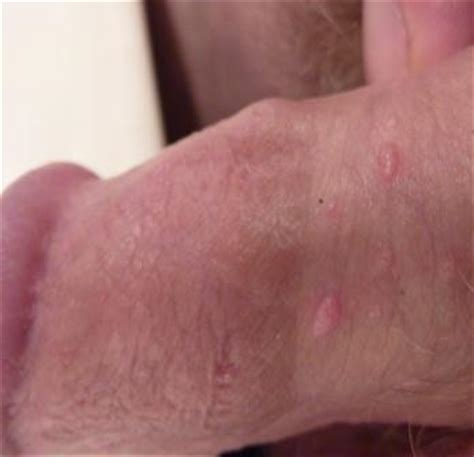contagious bacterial blood infections picture 13