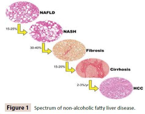 non alcoholic fatty liver picture 5