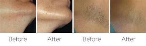 epilight hair removal pricing picture 10
