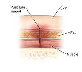 hard p under skin picture 3