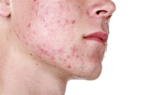 thyroid enlargement and acne picture 2