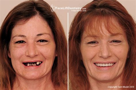 anti aging facial picture 6