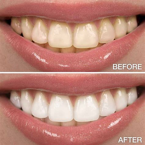 tooth whitening california picture 11