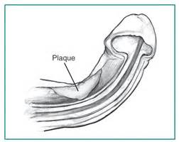 curved penis medical pictures of picture 5