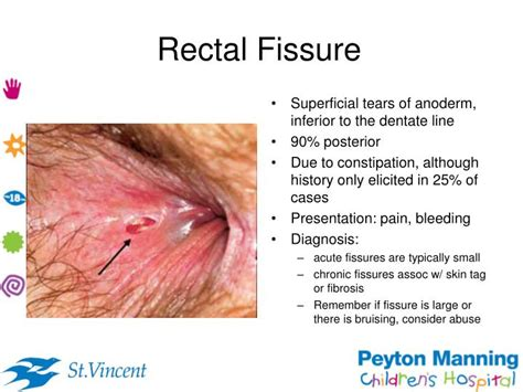 annal skin disorders picture 2