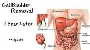 bowel incontinence after gallbladder removal picture 6