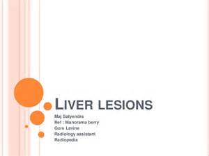 lesions on the liver picture 11