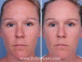 pinpoint laser treatment orange county picture 3