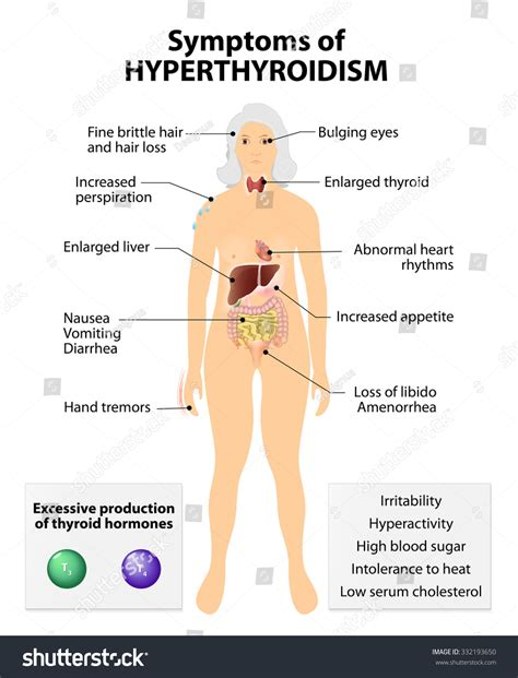 and hyperthyroidism picture 22