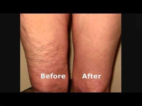skin tightening cream for legs picture 1