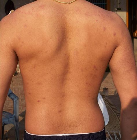 back acne mark picture 2