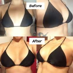 breast augmentation 400 cc picture 6