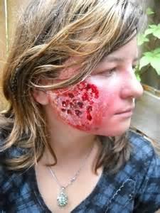 acne milk picture 5