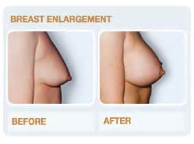 breast enlargement on finance picture 2