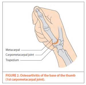 joint pain in wrist and thumbs picture 9