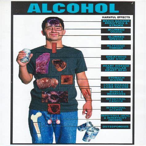 alchoholism and liver cirrhosis picture 9