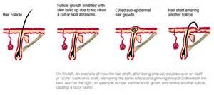 hair on face genital disturbances for urdu picture 8