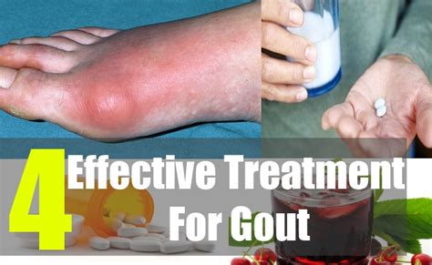 gout herbal picture 2