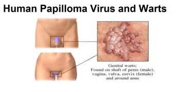 drug remove warts caused by hpv picture 10