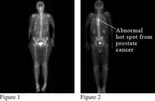 full bladder on a bone scan picture 1