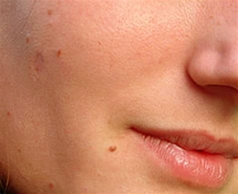 skin tag pictures picture 7