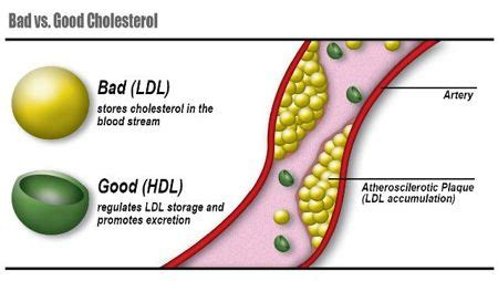 Bad and good cholesterol picture 9